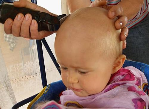 удаление волос